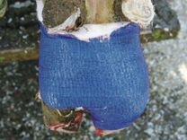 Самоклеющиеся фиксирующий бандаж
